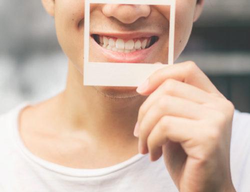 Fotografía Dental
