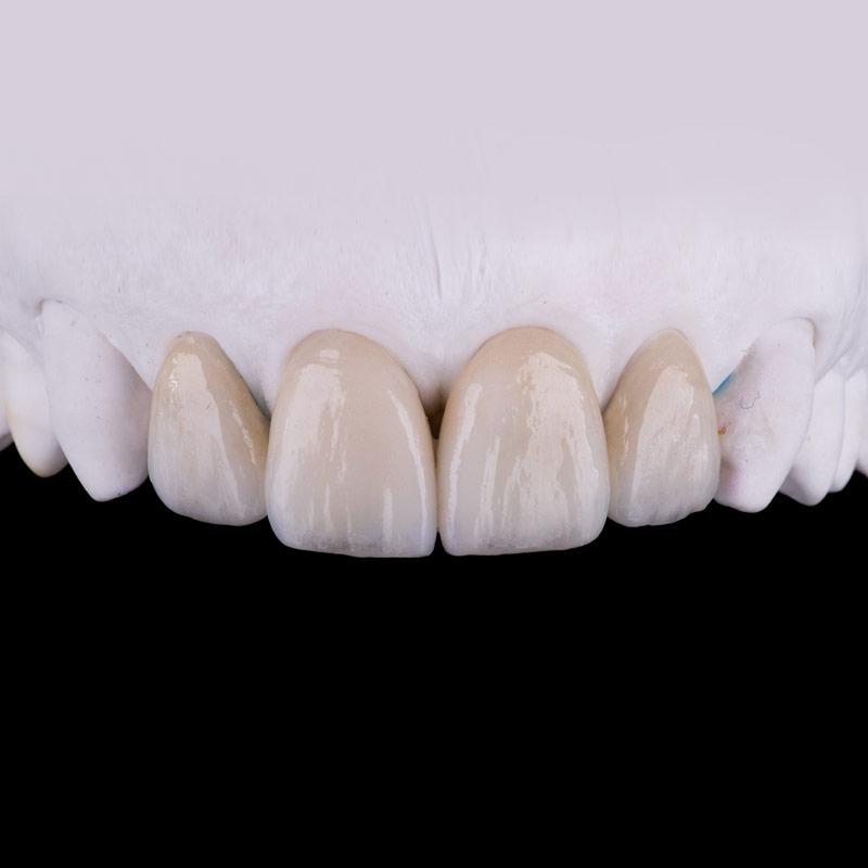 Prótesis dental estética