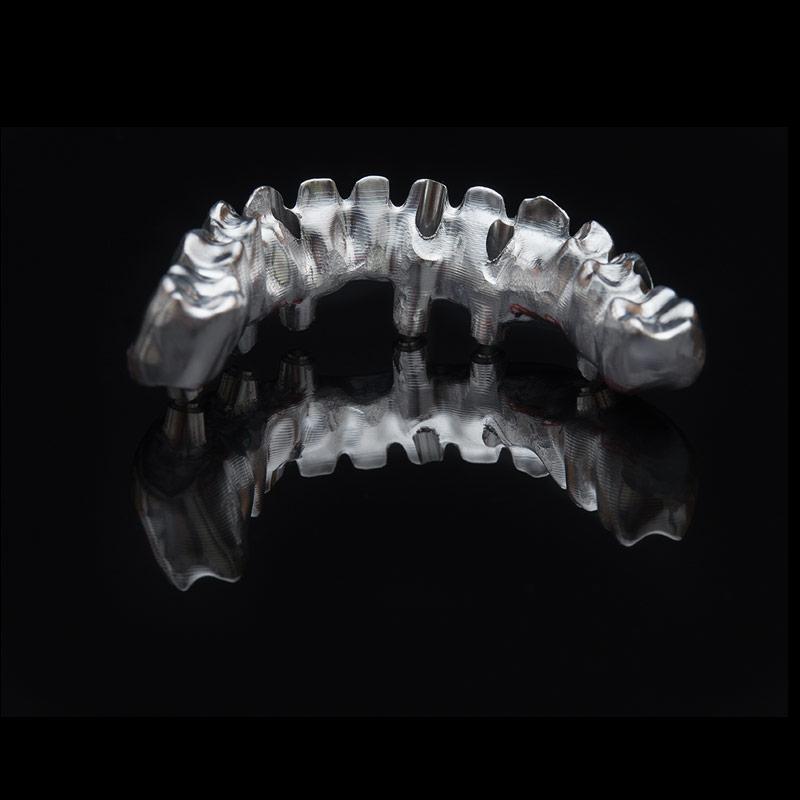 Prótesis dental de estructura fija